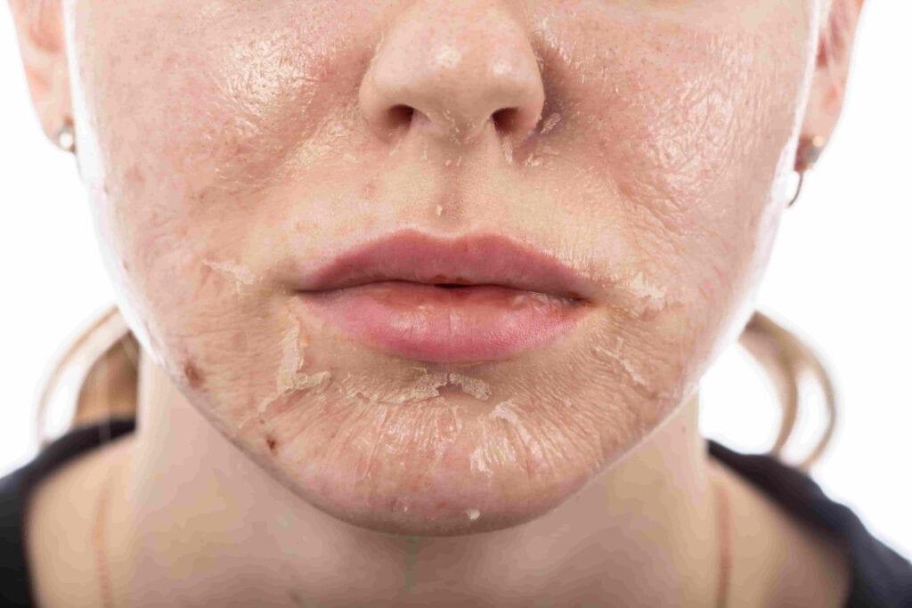 Esfoliazione peeling viso